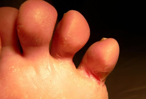 symptoms thumbs Dry foot sore athletes