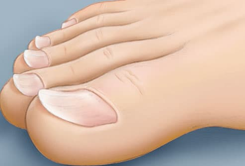 illustration of spoon shaped toenails