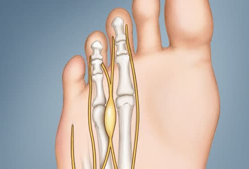 illustration of mortons neuroma