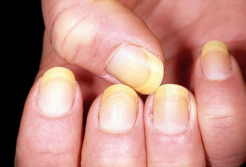 Yellow fingernails on a woman's hand