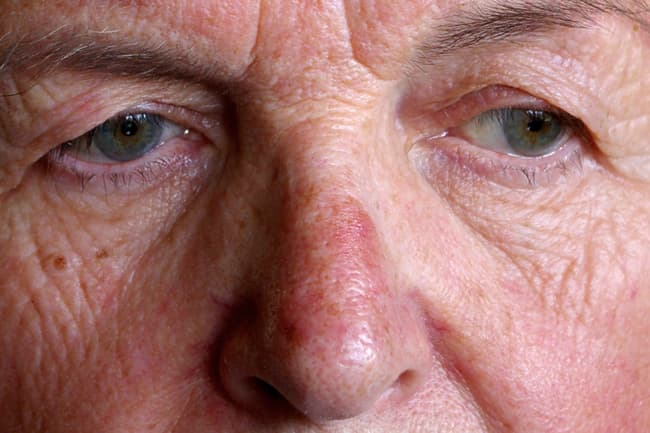 mature woman with rosacea