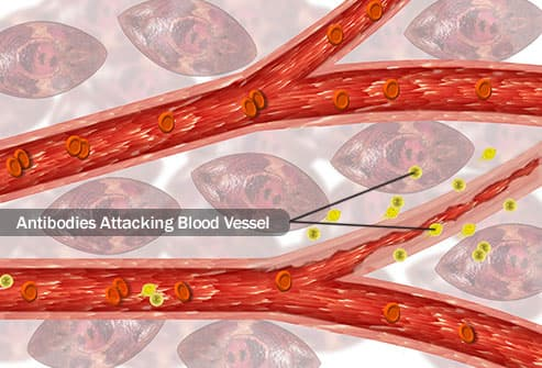 antibodies attacking blood vessel