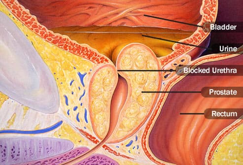 blocked urethra illustration