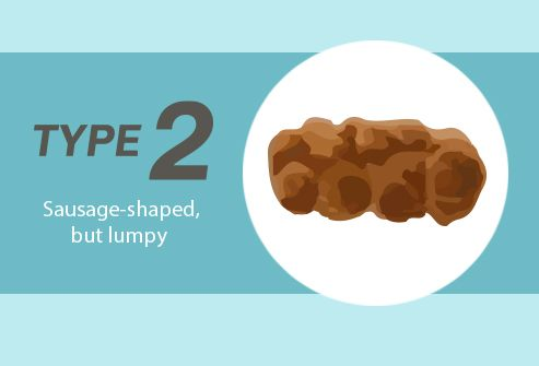 Poop Slideshow: What Its Shape, Size, and Smell Say About