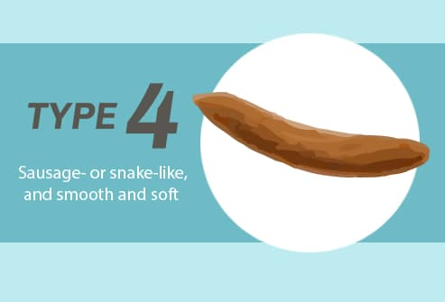 Poop Slideshow: What Its Shape, Size, and Smell Say About Your Health