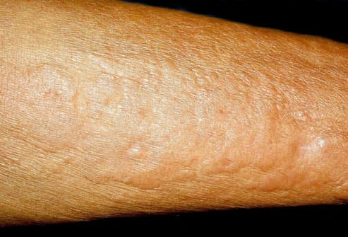 Pictures of What Your Skin Says About Your Health