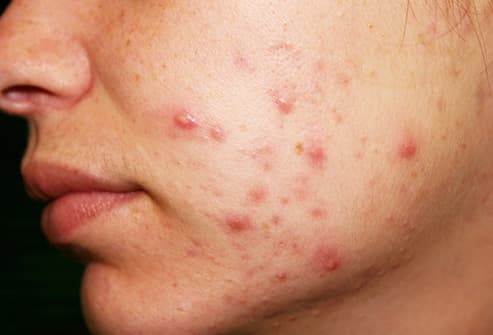 acne on cheek close up