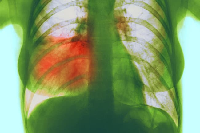 pneumonia in right lung