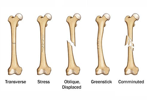 Pictures of Types of Broken Bones and How They Heal