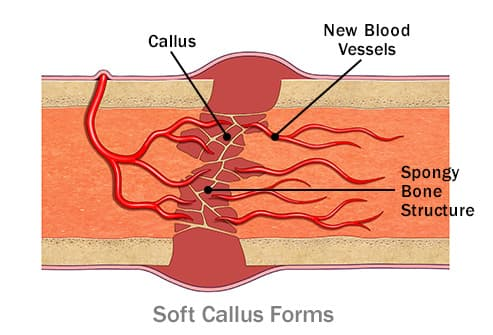 493ss_webmd_ed_soft_callus_forms_illustration pictures of types of broken bones and how they heal