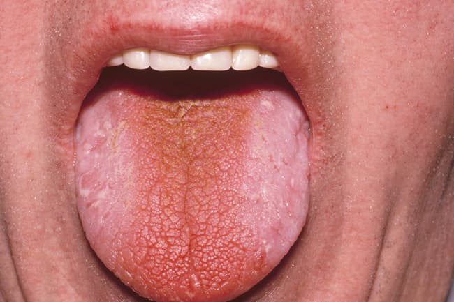 photo of dry tongue