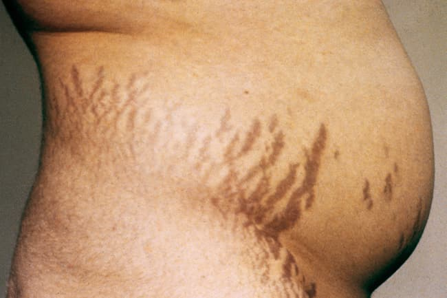 photo of stretch marks on stomach