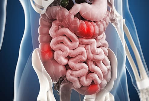 irritable bowel syndrome illustration