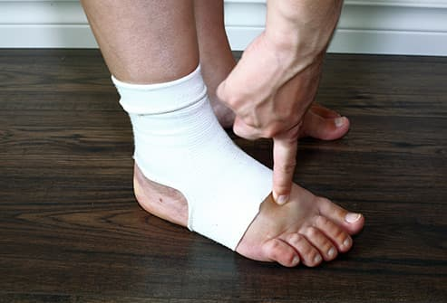 checking foot edema