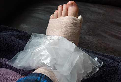 iced ankle