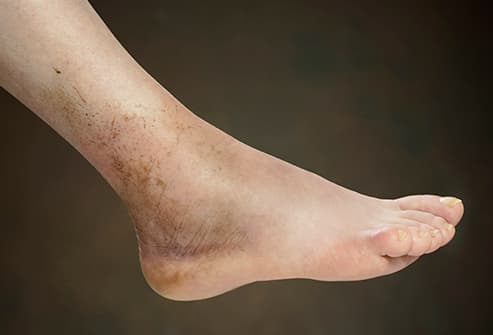 Pictures Of Swollen Feet And Ankles