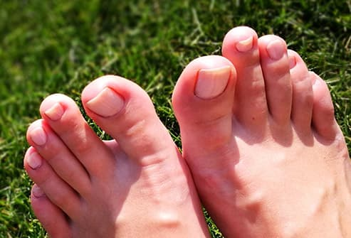 Pictures Of Toenail Colors And What They Mean