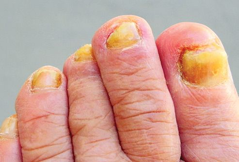 All Yellow Toenails