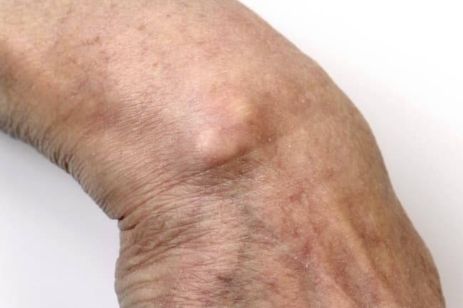 Pictures: Why Your Hand Hurts