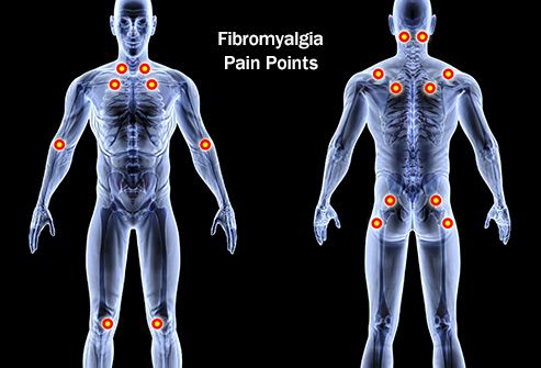 fibromyalgia illustration