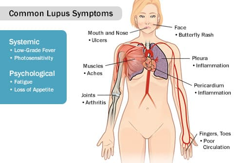 lupus symptoms female anatomy