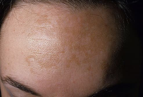 Why Is My Skin Blotchy? Pictures of Rosacea, Hives, Psoriasis, and More