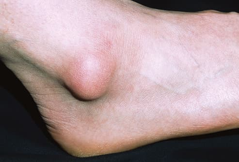 why does my ankle hurt 15 possible causes of ankle pain