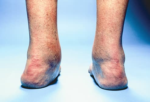 Why Does My Ankle Hurt? 15 Possible Causes of Ankle Pain
