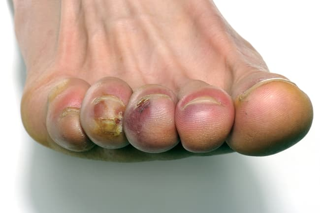 photo of raynauds phenonmenon on toes