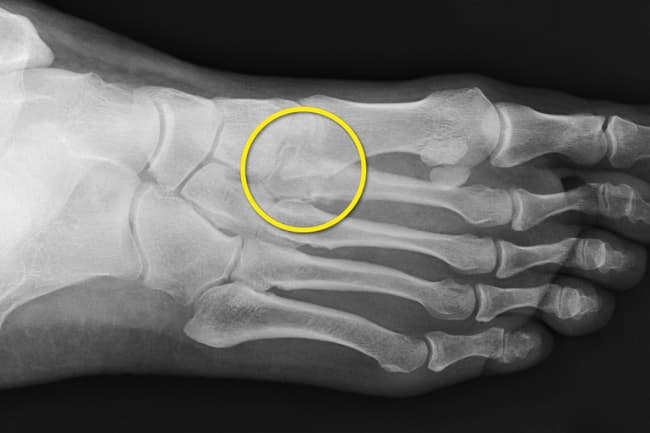 xray of stress fracture in foot