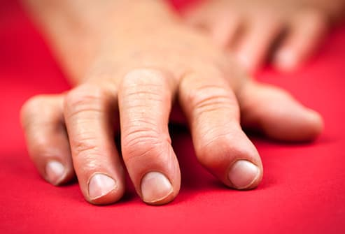 hand displaying rheumatoid arthritis