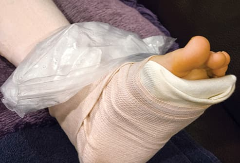 icing elevated ankle in cast