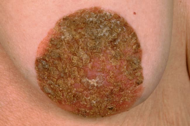 photo of breast cancer of nipple