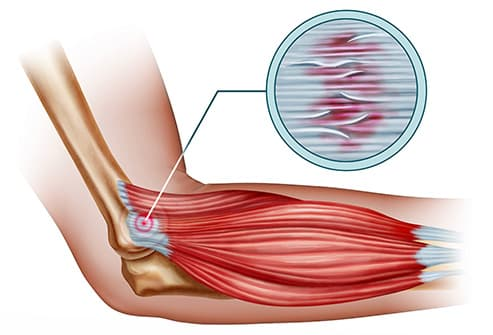 tendonitis in elbow