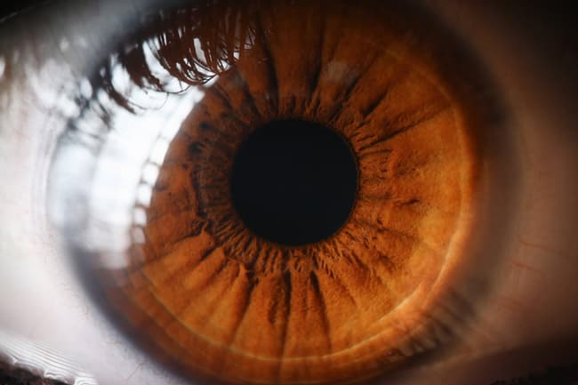photo of eye