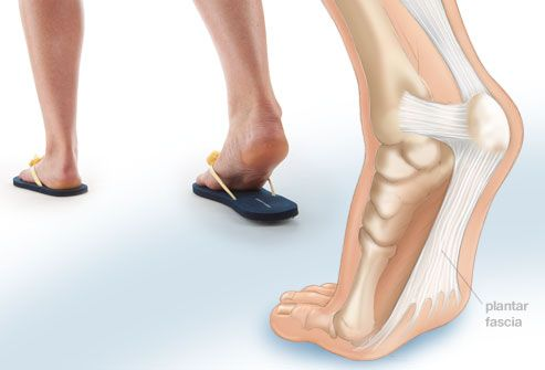 Composite showing plantar fasciitis