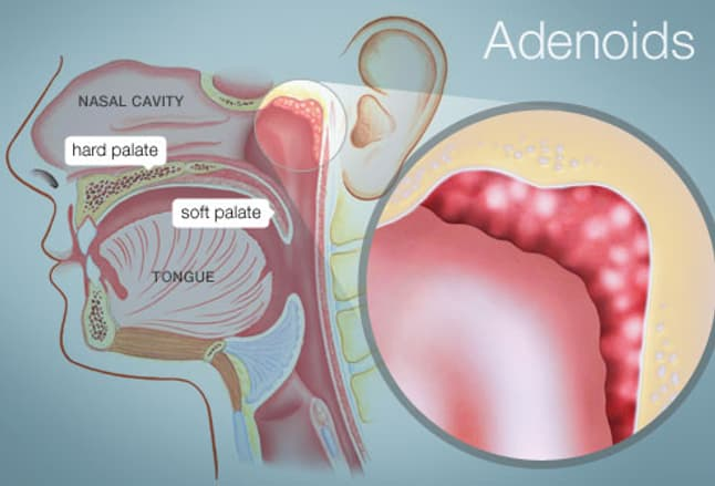 Anatomy of the tonsils and adenoids