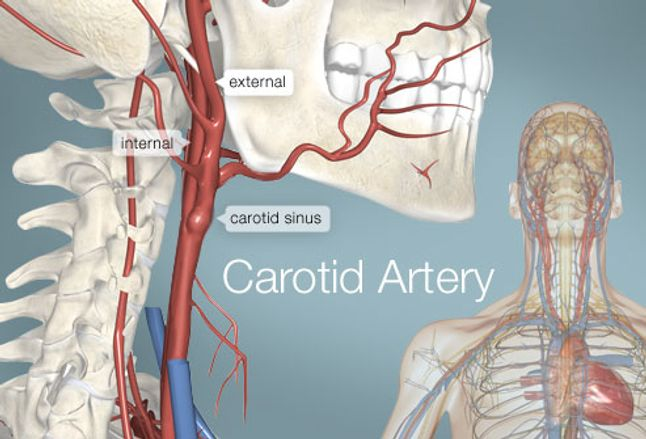 Carotid Artery (Human Anatomy): Picture, Definition, Conditions, & More