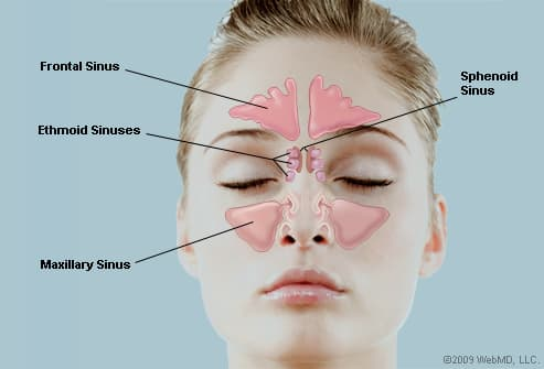 Sinus and It's Causes