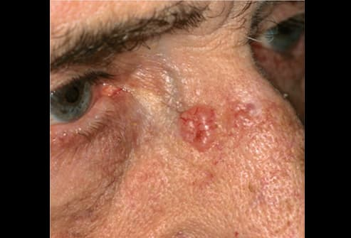 Picture of Basal Cell Carcinoma on the Nose