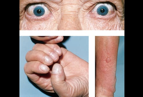 Picture of Graves' Disease