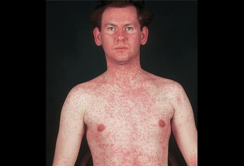 Can measles in adult words... hope