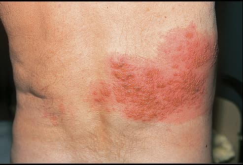 Herpes zoster on penis did
