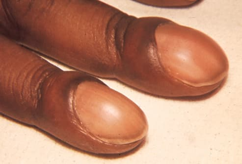 Picture of Clubbed Nails