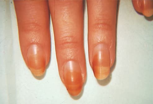 Picture of Discoloration of Nail Plates