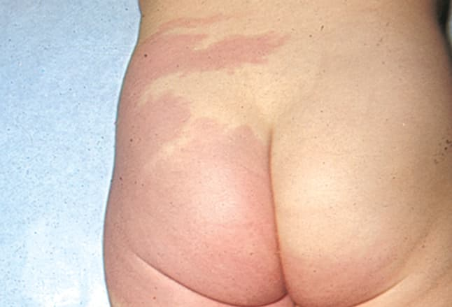 Picture of Klippel-Trénaunay-Weber Syndrome