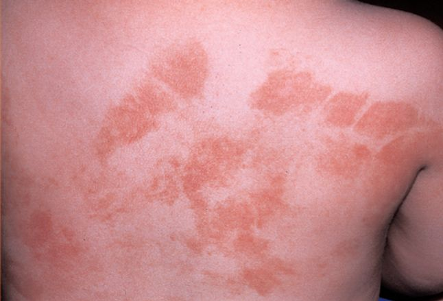 Picture of Phytophotodermatitis