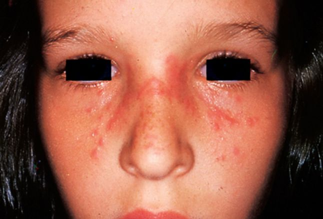 Picture of Polymorphous Light Eruption on Nose