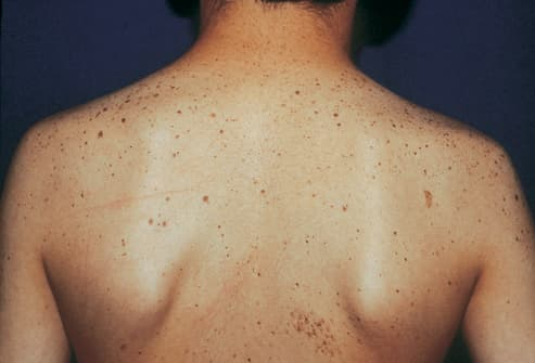 Picture of Multiple lentigines Syndrome on Back