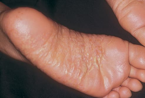 Picture of Palmoplantar Pustulosis on Feet